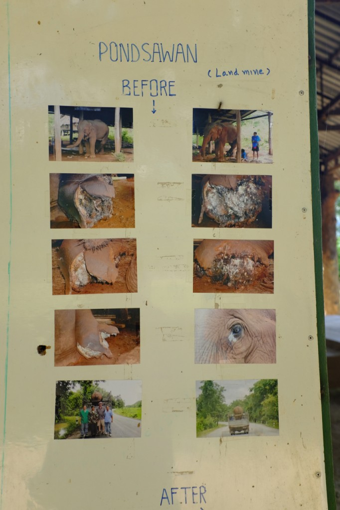 A poster showing photos of injuries from a land mine.